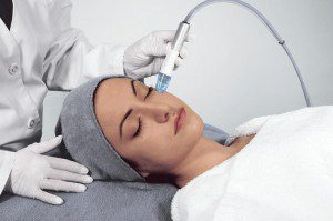 Microdermabrasion-Treatment